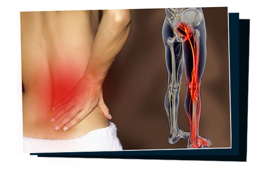 sciatica sos by pain