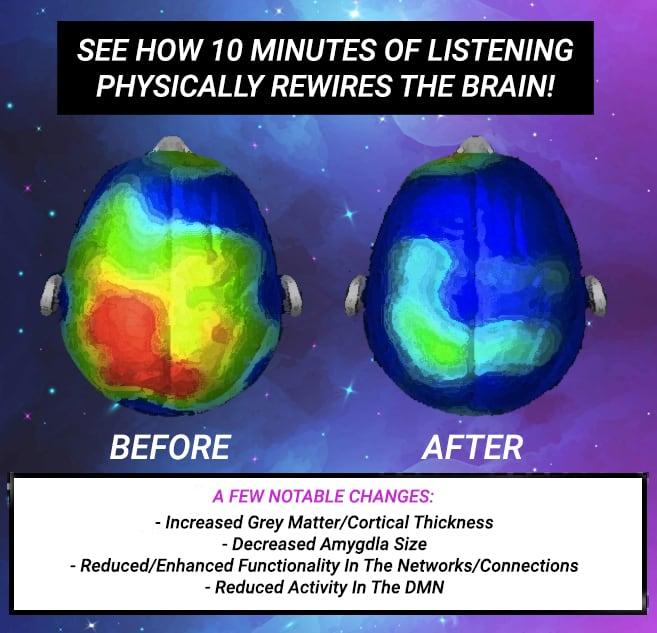 10 minutes awakening brain scan